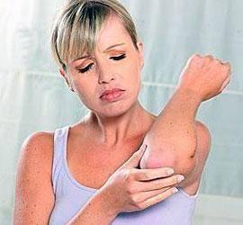 什么是过敏性湿疹?过敏性湿疹有4个特点,看看你是属于哪一个?