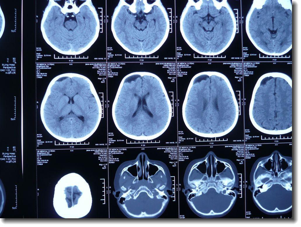 儿童蛛网膜囊肿手术方式选择和疗效分析