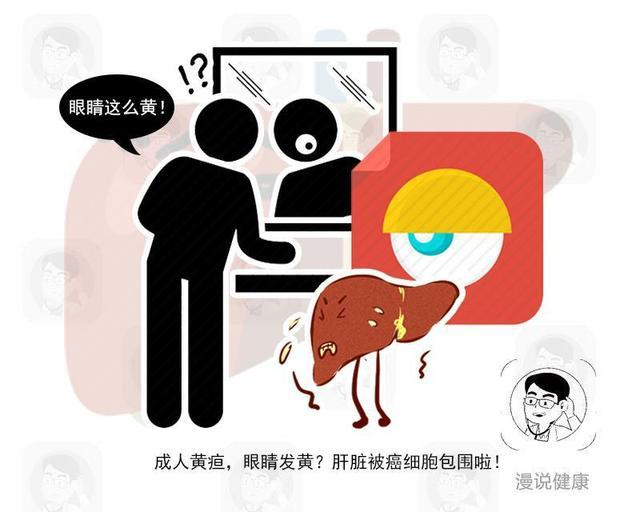 肝脏癌变不痛不痒?提示:6个不适再忍受,肝病终究只能走向肝癌
