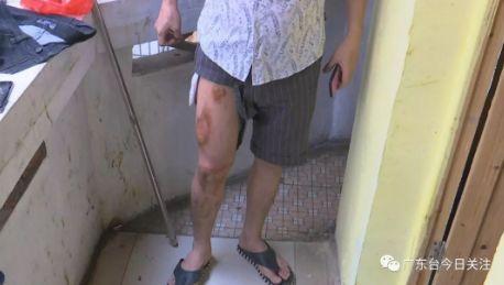 苹果手机放裤袋自燃!广州一男子被烫伤:我裤子都穿不了