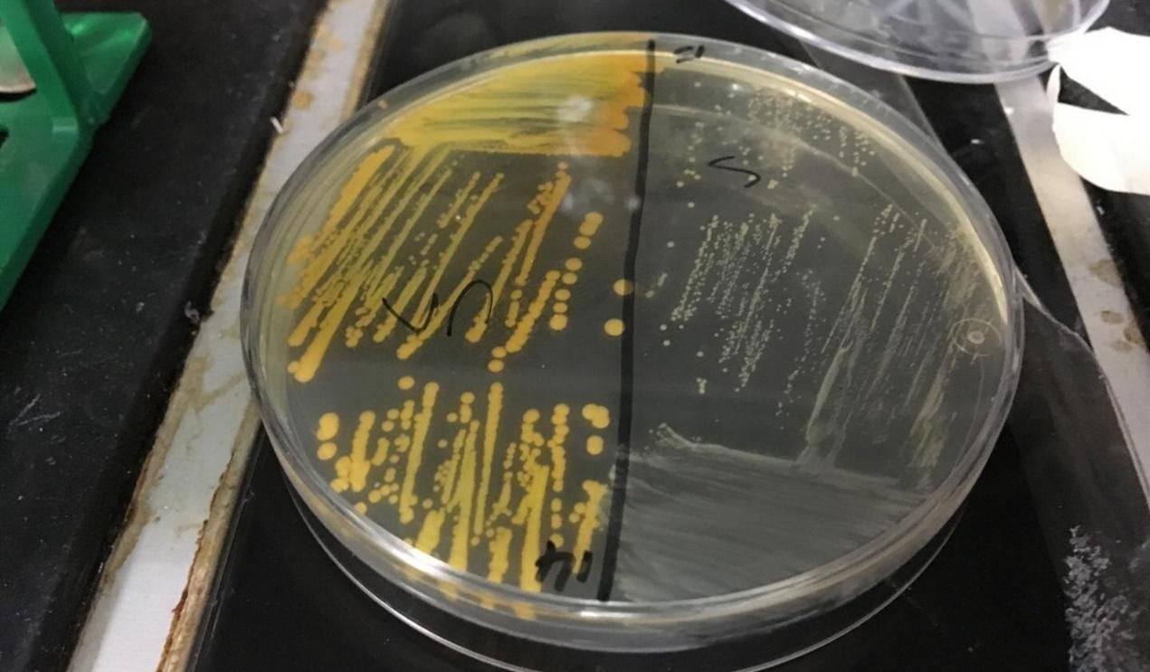 搜狐科学 |烟民为啥更简单感染?英国研讨发现,吸烟让超级细菌更耐药