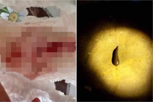 换下尿布喷血!泰国4岁女童吓坏爆哭 竟是被它吸到饱