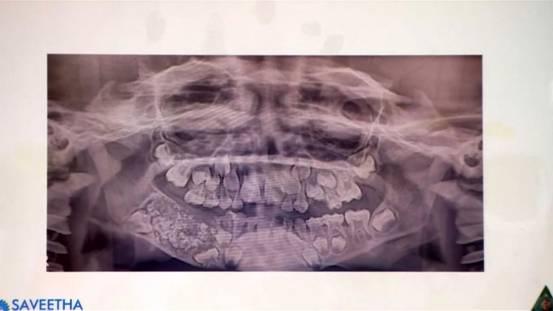 印度一名7岁男孩嘴部异常肿胀 医生从他口中拔出526颗牙