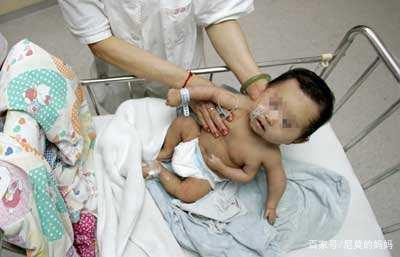 """胎儿被查出""""畸形"""",孕妈不顾医生意见坚持生下,是爱还是自私"""