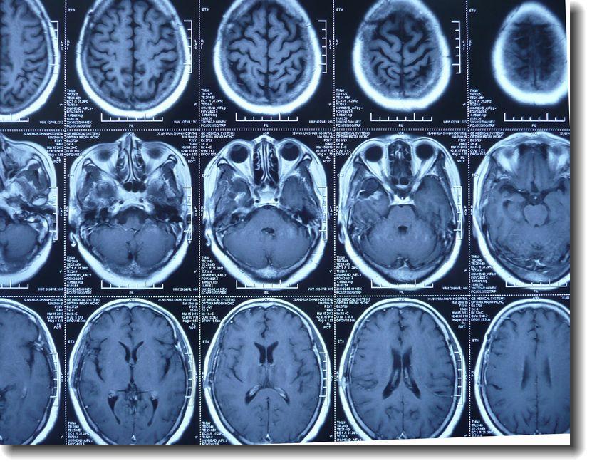 贺晓生教授脑胶质母细胞瘤的早期复发案例