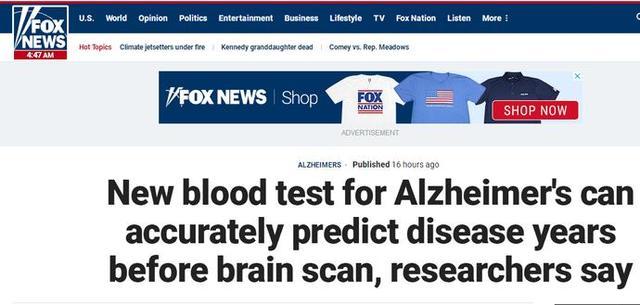 美国研究出阿尔茨海默症新诊断法 准确率高达94%