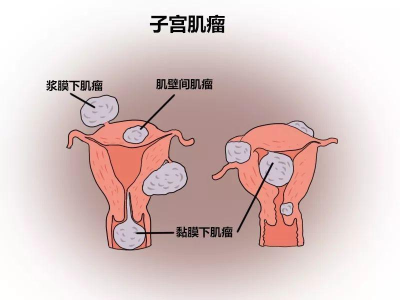 妇科常见病,你了解多少?