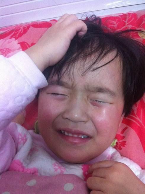 4岁女童拿502胶水滴眼睛,宝妈聪明做法,医生为她点赞