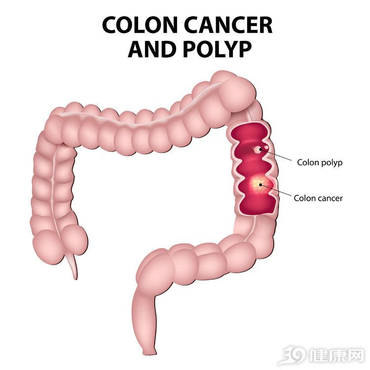 """<b>肠癌初期,留意""""3多2痛""""!很多人以为是吃坏东西</b>"""