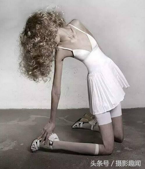 世界最瘦的人,只有22公斤的女孩ariel
