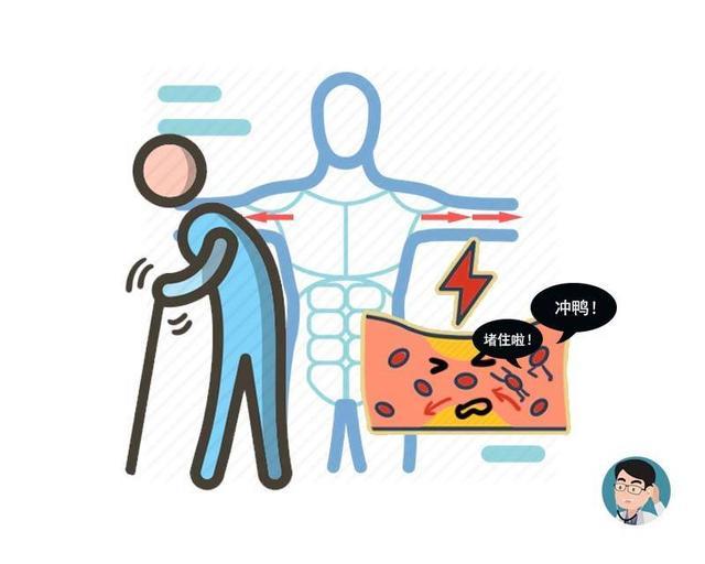 體內有血栓,夜間睡覺腿部會出現3個癥狀?提醒:占得越多越嚴重