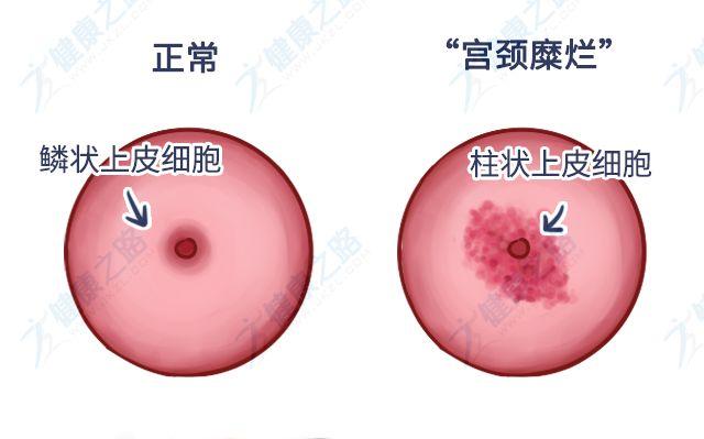 宫颈糜烂需要治疗多久?