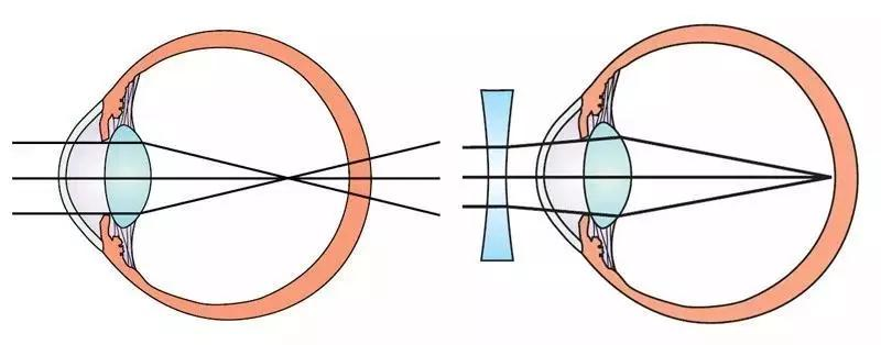 青岛眼科医院教你近视手术全飞秒、全激光、半飞秒应该怎么选
