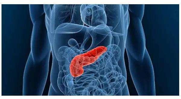 搜狐科学 |你的血糖规范吗?专家发现高血糖及高胰岛素易导致胰腺癌
