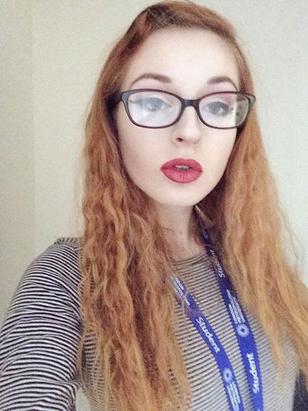 英国一女子分享癫痫发作视频 警示网友莱姆病的危害