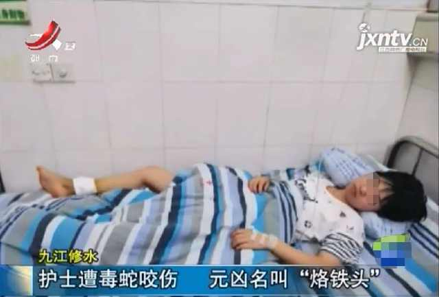 九江90后护士,上晚班时突然吓得跳了起来!伤口已经出现坏死