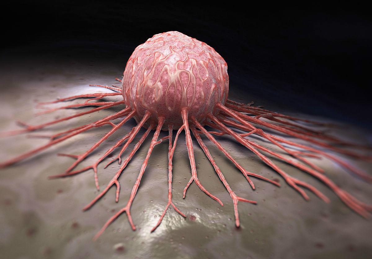 体内有癌,身体常常有四个标志,远离癌症,四个部位最好每年体检