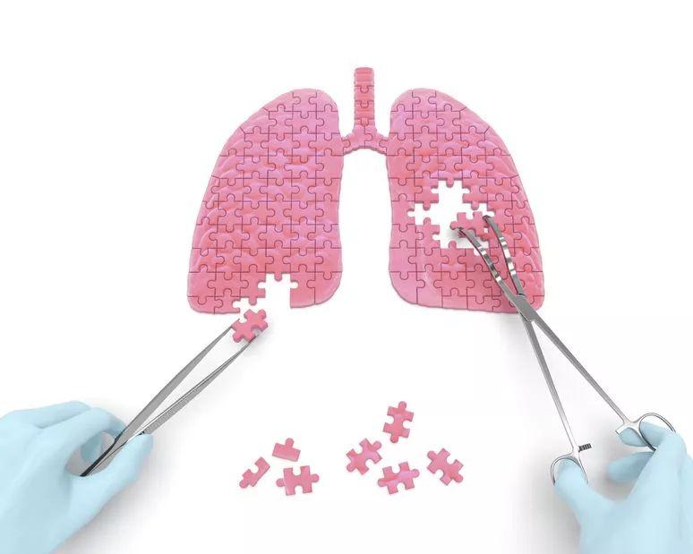 【体检检查出肺结节,这到底是癌呢?癌呢?还是癌呢?】肺部结节是癌吗