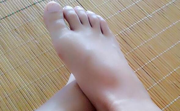 低头看脚可知血糖健康,脚部出现哪些异常表现,是暗示血糖太高?