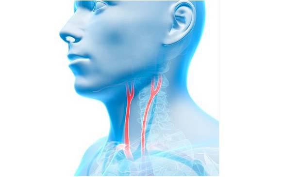 颈动脉彩超知识大全 颈动脉彩超能查出什么?