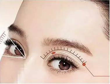 暑期针对学生进行埋线双眼皮半价优惠