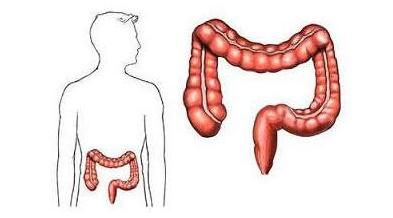 """肠癌是""""吃""""出来的,三种食物少往嘴里""""塞"""",小心肠癌找上门!"""
