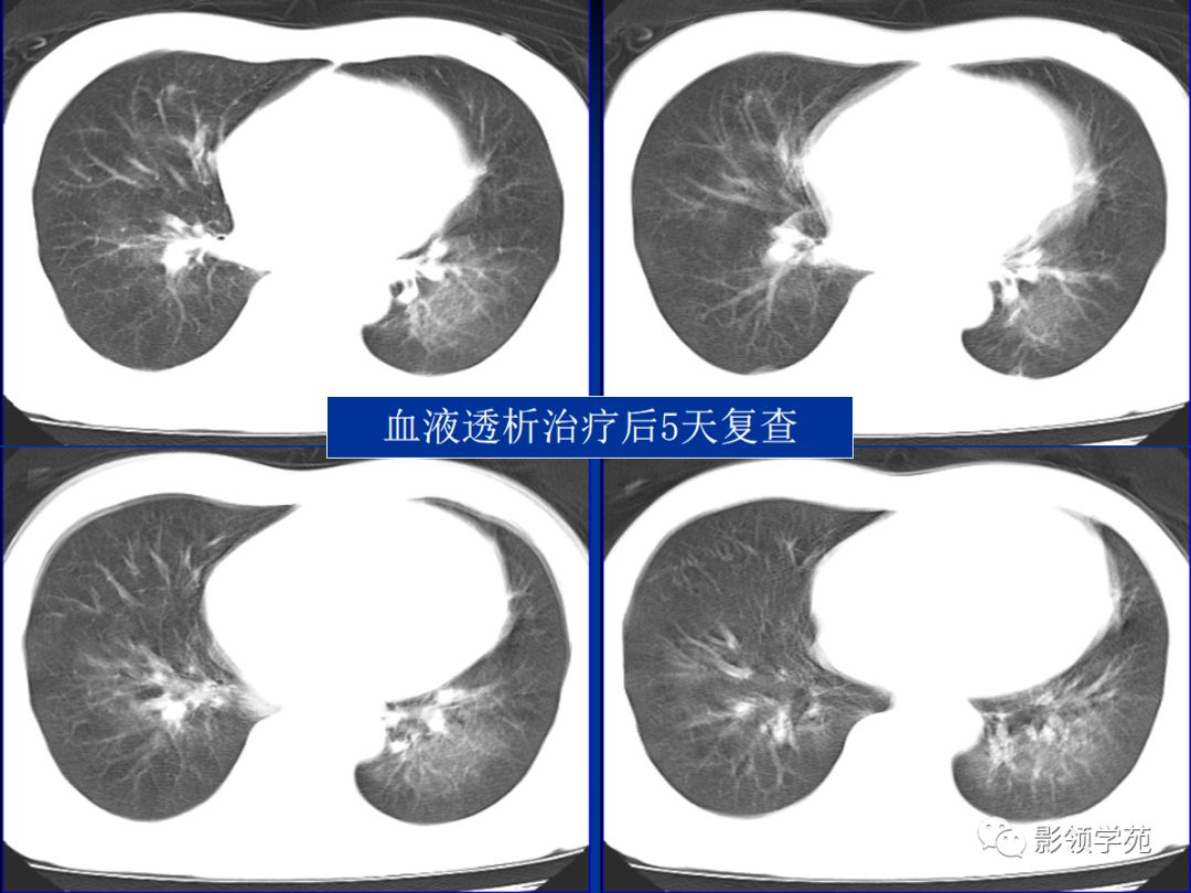 高原肺水肿的症状表现有哪些_孙伟大医生讲座讲解... -快速问医生