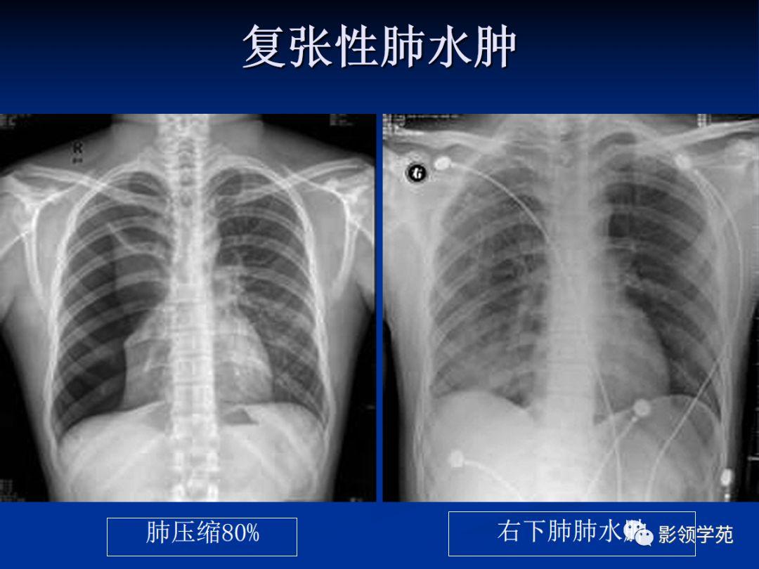 高原肺水肿有什么表现 - 问答频道 - 博禾医生