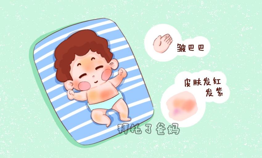 新生宝宝都病了你却不知道?判断新生儿是否健康,看4点就明白
