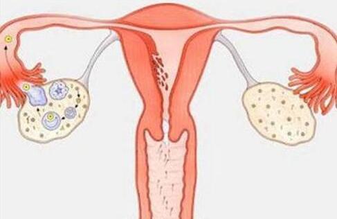 患了多囊卵巢综合征,减肥有用么?来看看她如何治疗!
