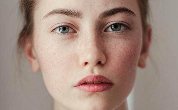 脸上长斑的原理图_脸上长斑图片