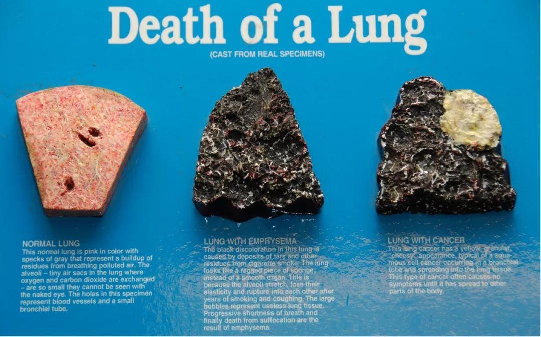 【健康科普】确诊肿瘤后,继续吸烟会有什么后果?