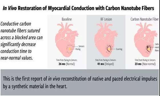 美国动物研究证实 新材料可重建心脏传导系统