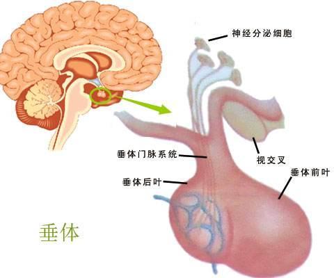垂体瘤应该重视的四大典型症状!