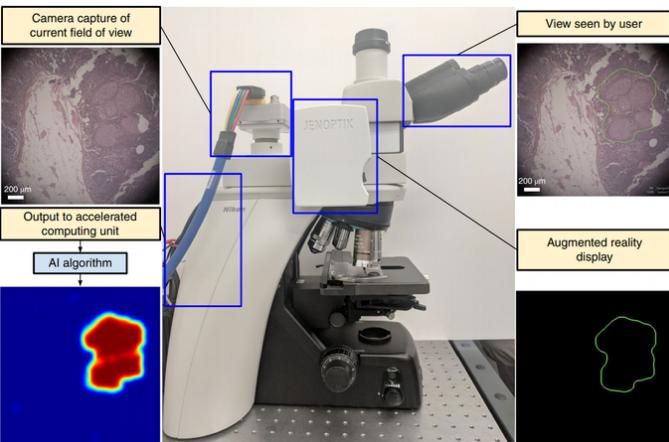 谷歌开发出诊断癌症的人工智能显微镜