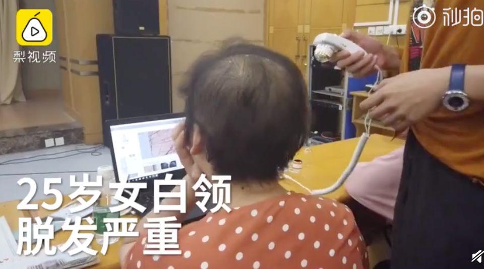 25岁女白领秃顶,发量只剩三成!网友:程序员都不这样