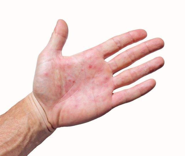 手掌也是健康信号灯,出现这6个细微变化时,别视而不