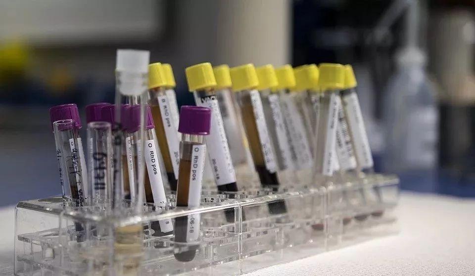 【华西检验案例】危及生命的噬血细胞综合征