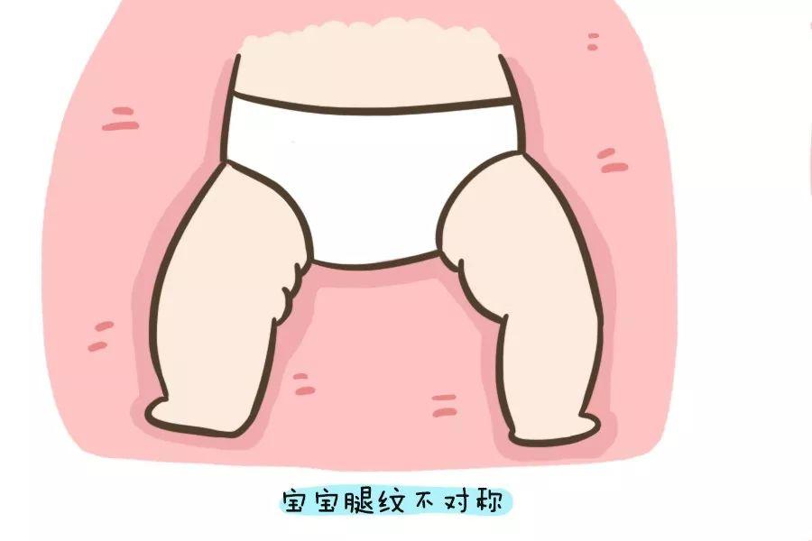 腿纹/臀围不对称就是髋关节发育有问题?学会自查方法,越早发现越好