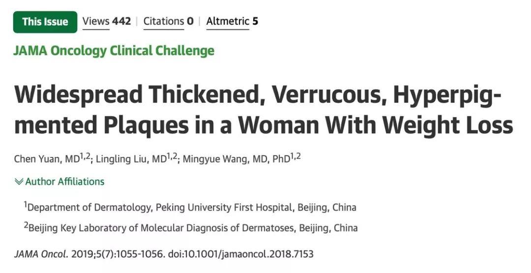 【科研動態】皮膚性病科在JAMA Oncology上發表關于惡性黑棘皮病的病例報道