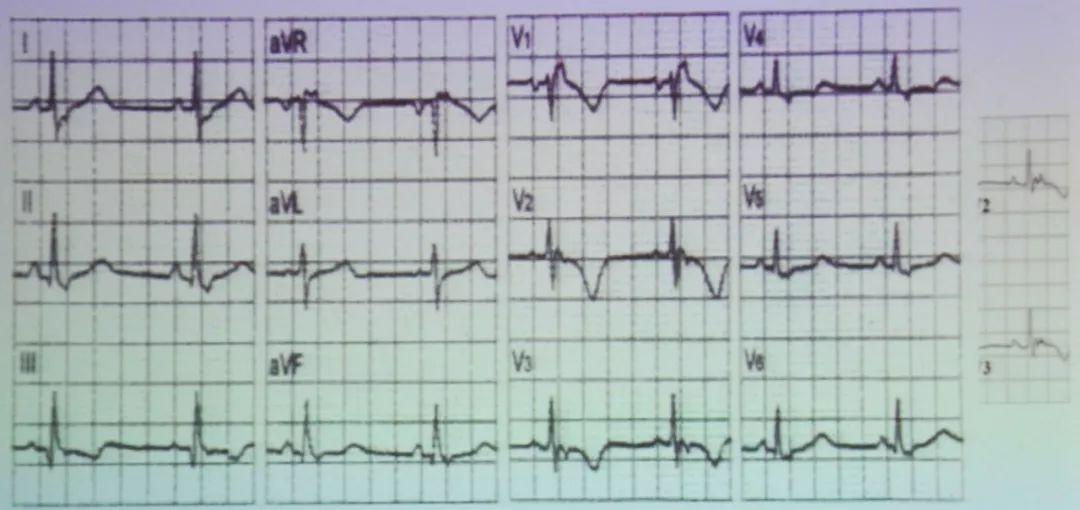 (3)心室晚电位   心室晚电位(vlp)是指出现在qrs波群终末部至st段起始部40 ms高频、低幅的碎裂波.