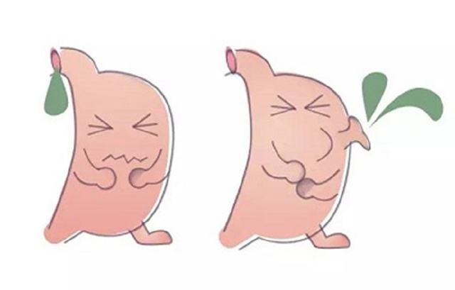胃胆汁反流有什症状