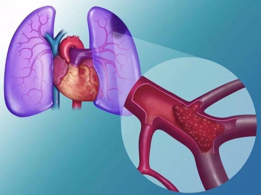 【静脉血栓防治平台】注意!这种隐秘血栓正在威胁你的生命!