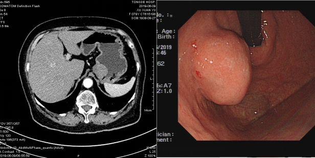 内镜下切除3.5cm肿瘤,巧用手套完整取出
