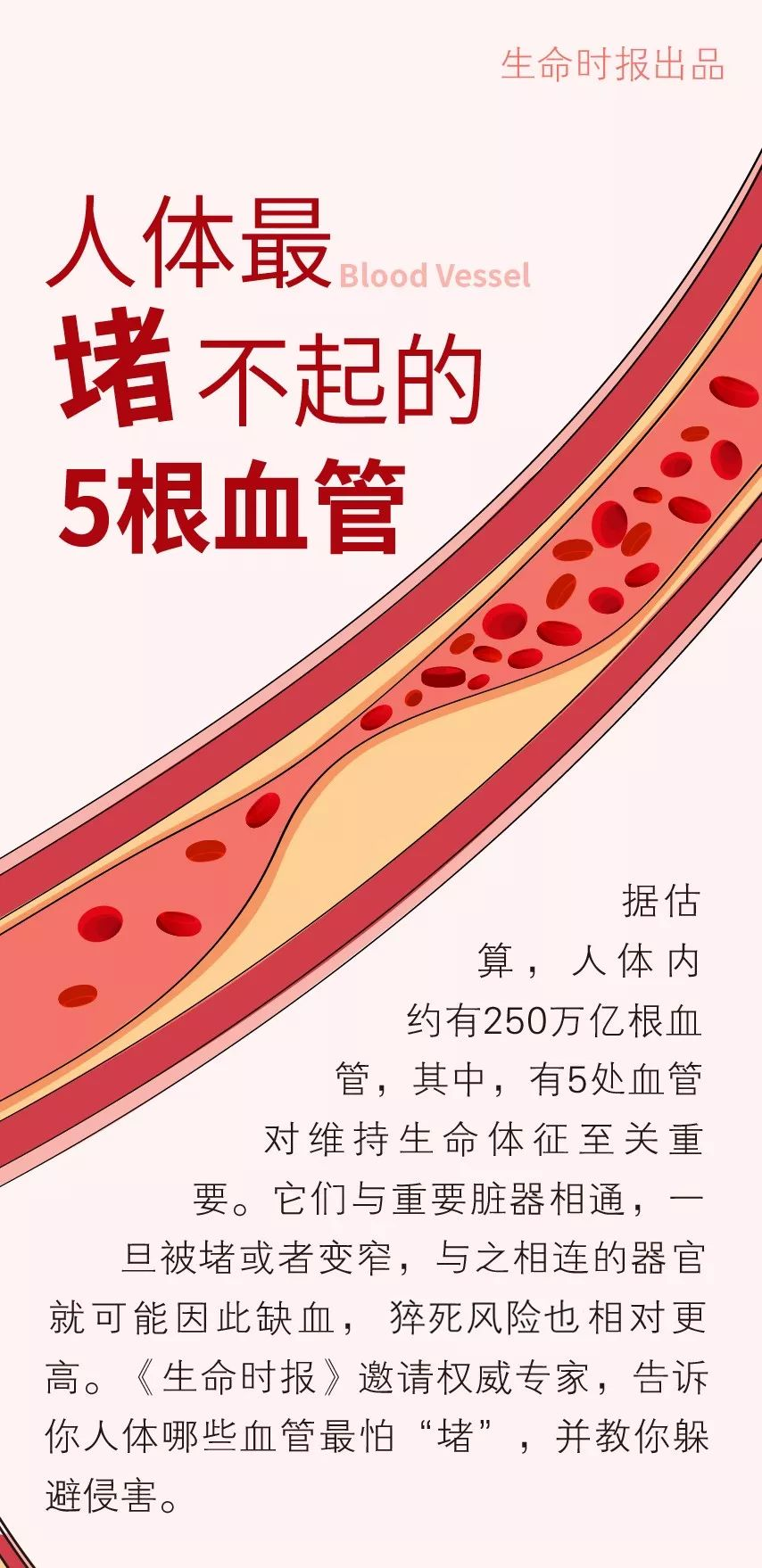 """这5根血管堵了会""""要命""""!8个好习惯快培养起来…"""