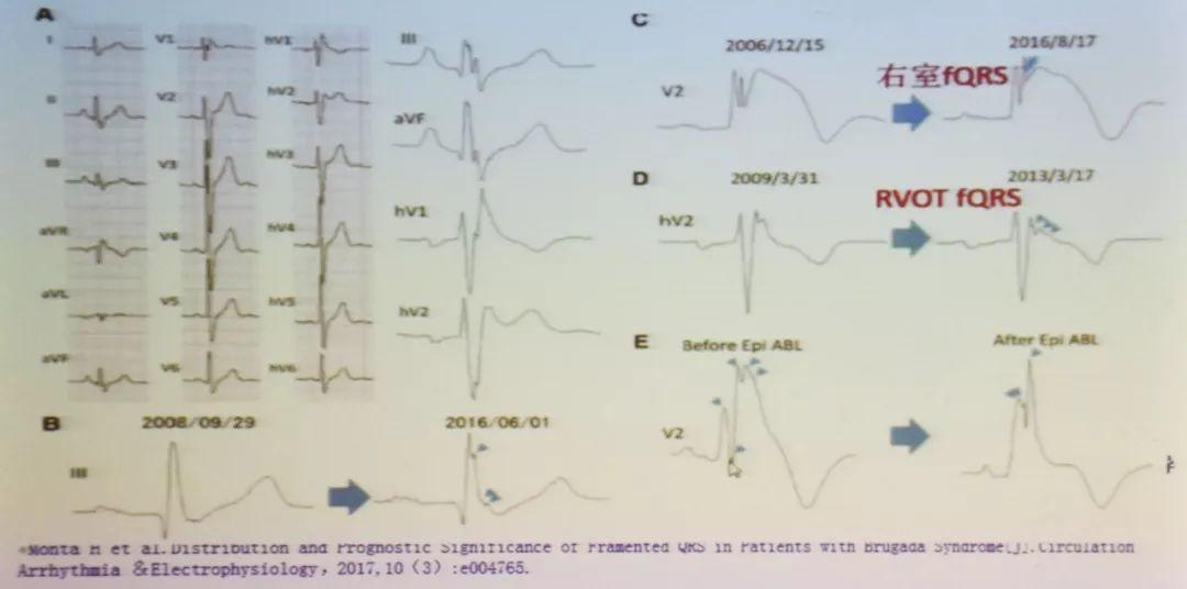 图3 碎裂qrs波与brugada综合征