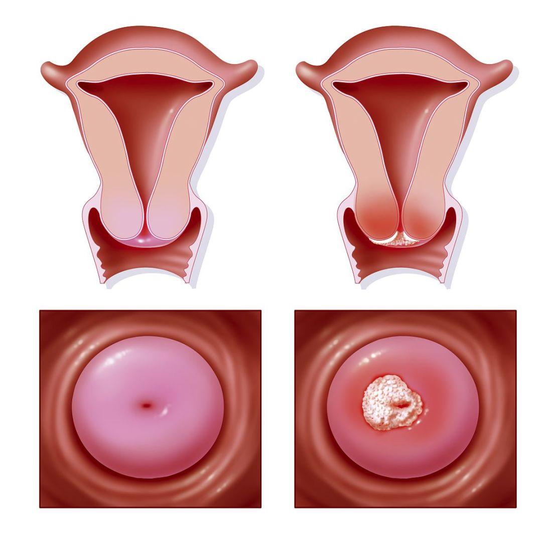 【宫颈癌】重视重视 患癌年轻化