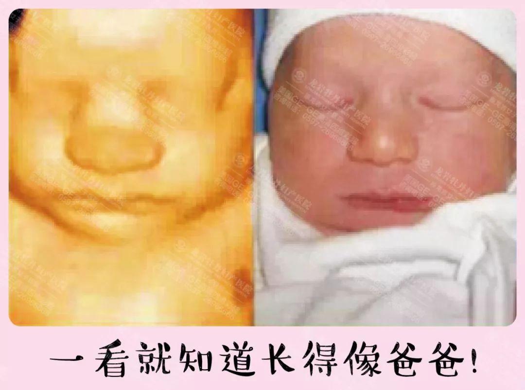 男宝宝的四维彩超照片