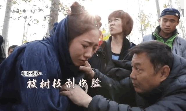 孟美岐拍戏被刮脸哭了,是真疼还是太脆弱?