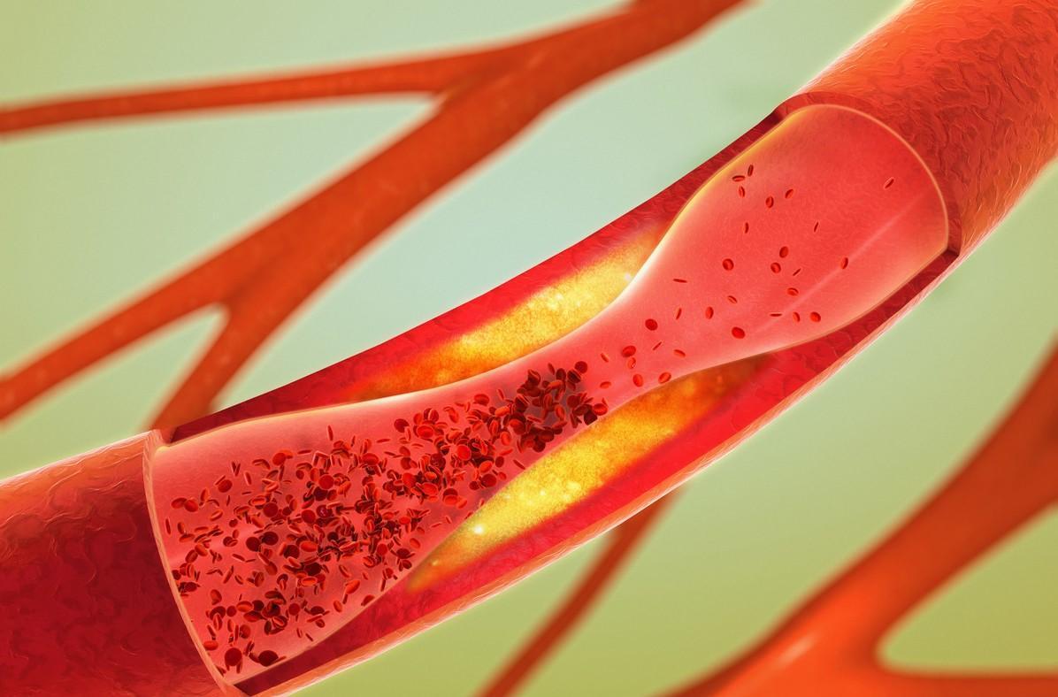 一直靠药物控制血压,如果不吃药了,会产生什么影响?